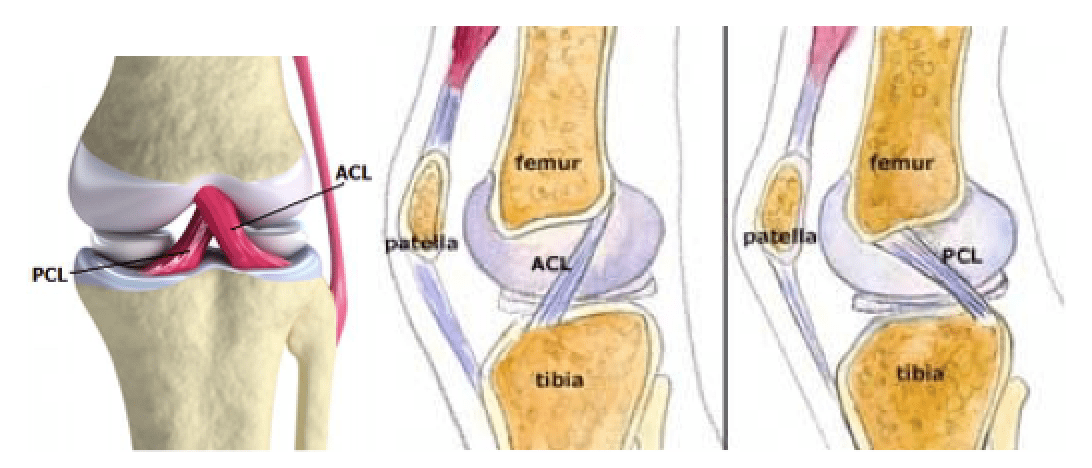 posterior cruciate ligament pcl injury The posterior drawer test is the most accurate test for pcl injury the posterior c pcl injury - everything you will test the posterior cruciate.