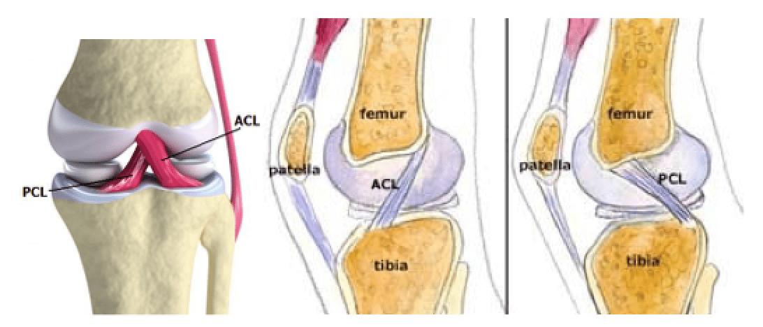 Training the Posterior Cruciate Ligament injured Athlete